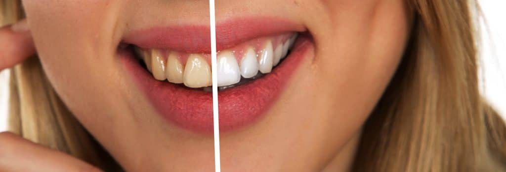 Woman smiling dental veneer crown