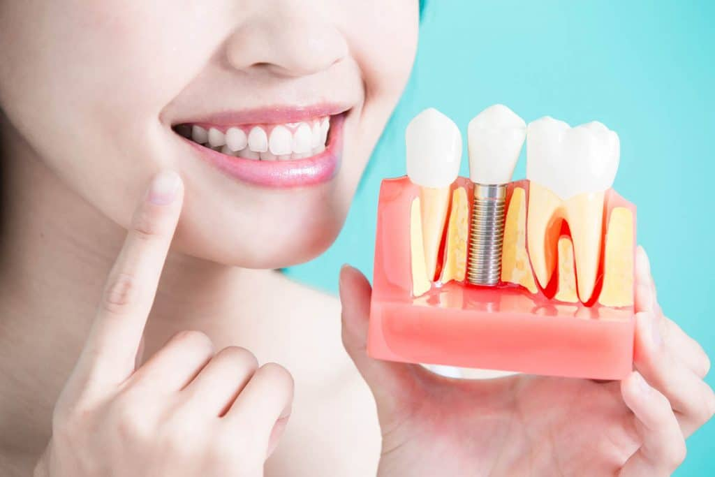 woman holding dental implants