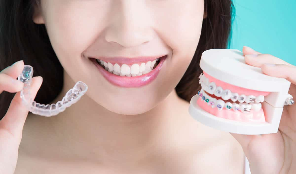 dental aligners and retainers