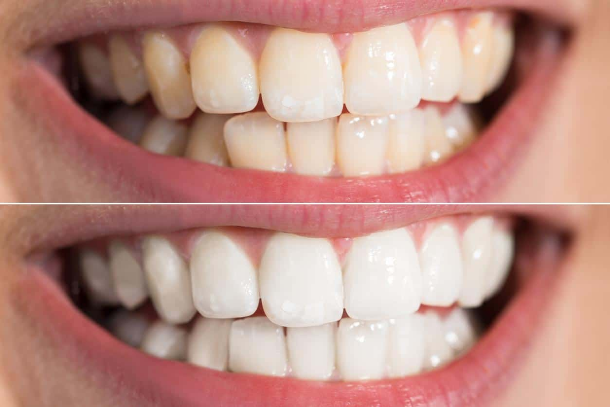 close up teeth whitening before after