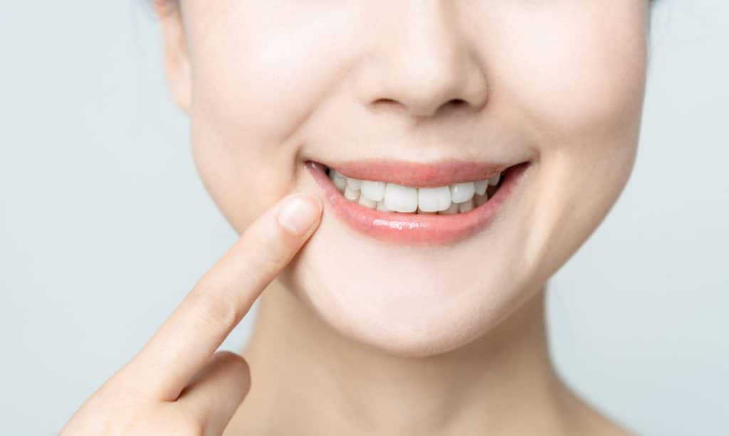 smiling female dental filling