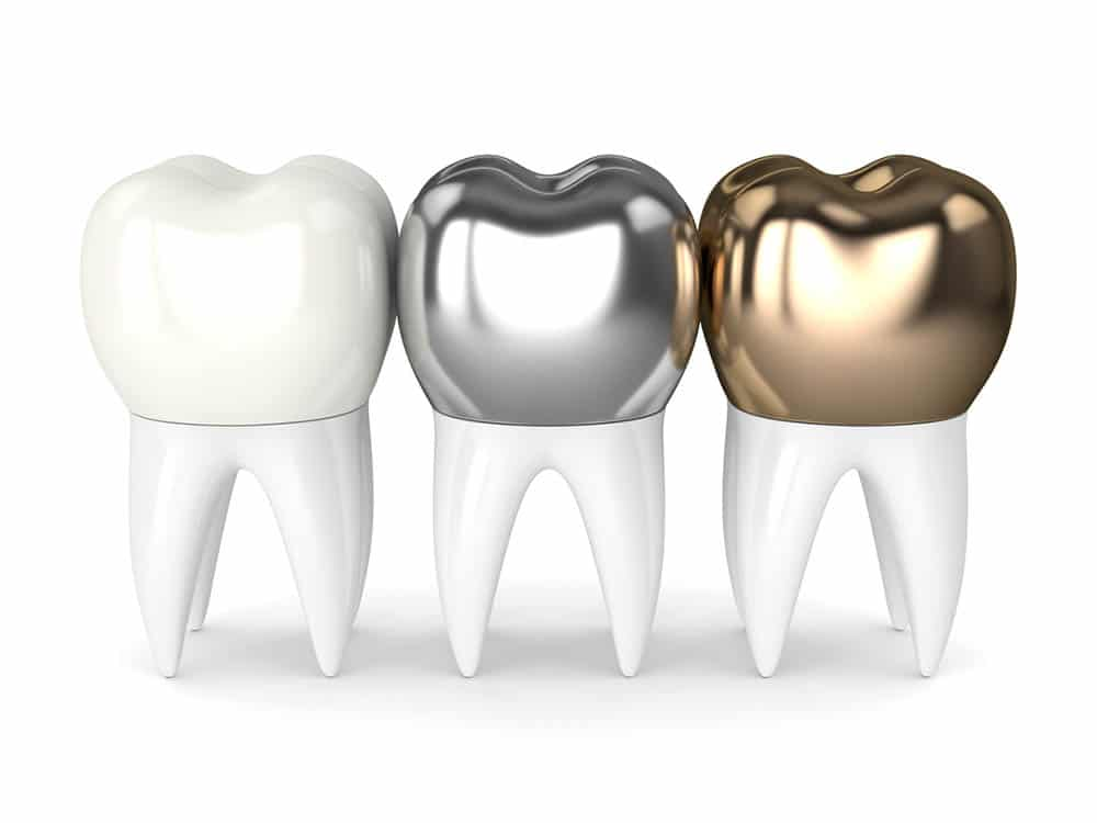 different types of dental crown