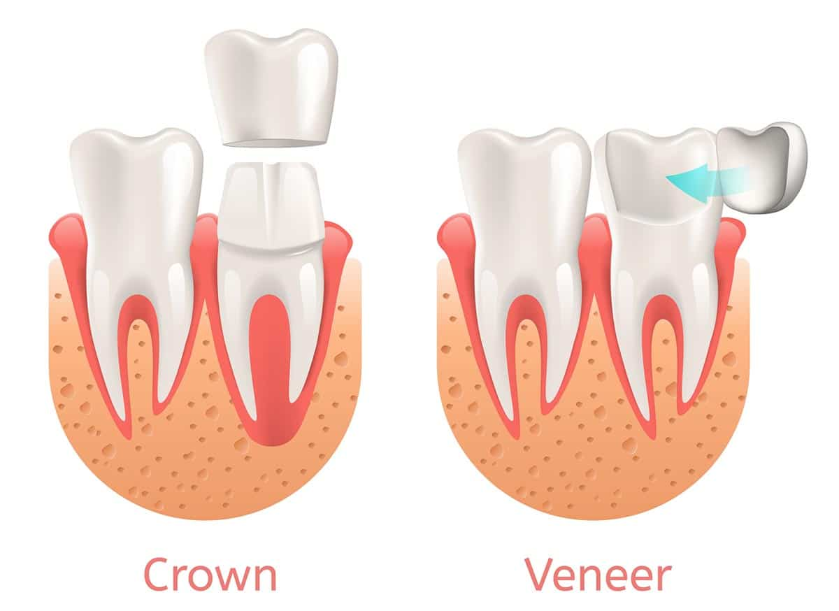 Dental Veneer and Crown Illustration