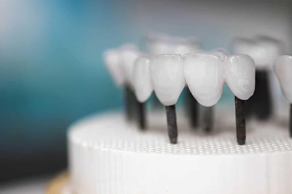 Zirconia Dentures