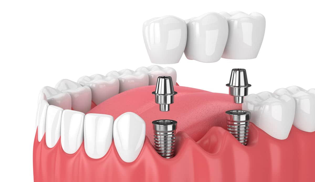dental bridge implant