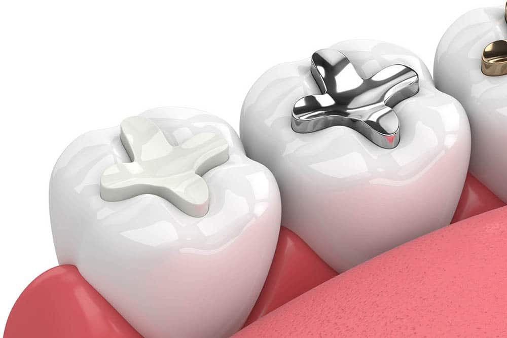 Amalgam and Composite Fillers