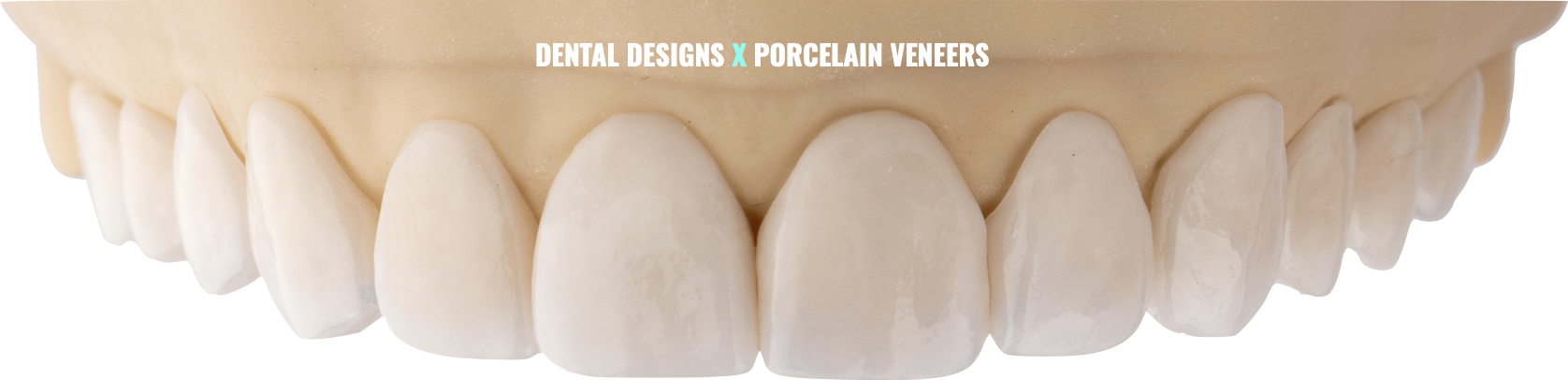 Dental Porcelain Veneers at Dental Designs Clinic