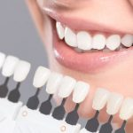 dental crown shade chart