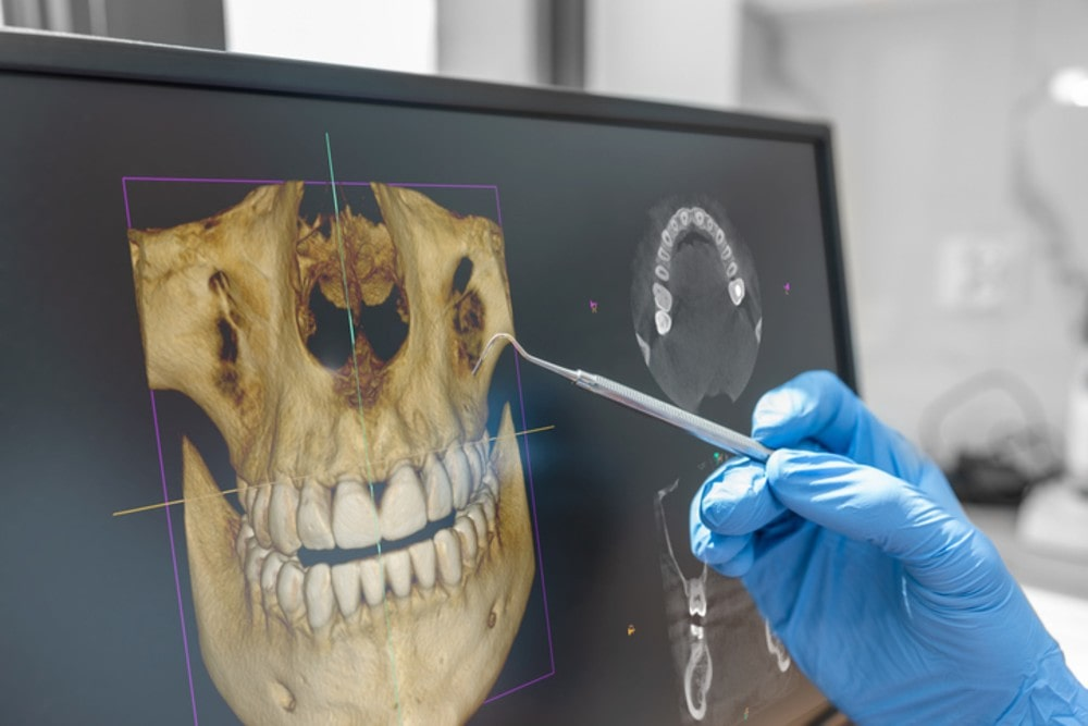 xray-picture-of-a-human-head-showing-teeth