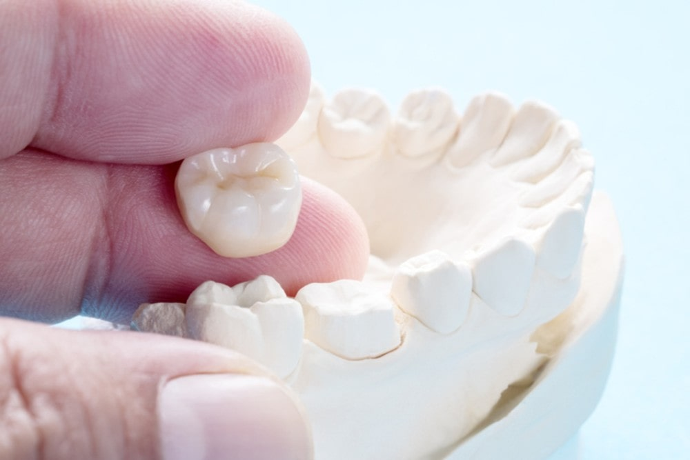 Picture of a dummy teeth