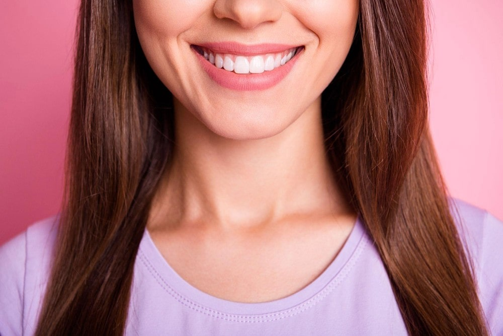 Lady smiling widely showing white teeth
