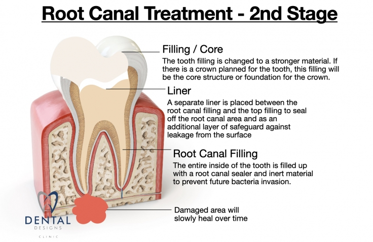 Root Canal Dental Designs Clinic Singapore